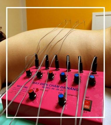 Elektro-Akupunktur